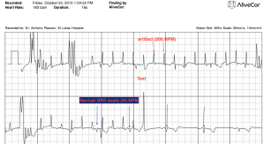 CPalivecor annotated