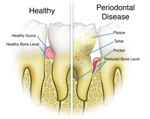 Periodontal-Disease-Trailhead-Dental