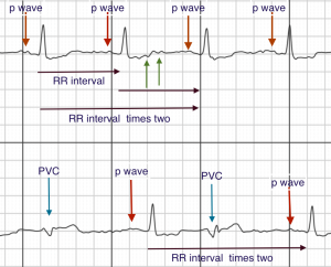 sr-pvcs-with-annotations