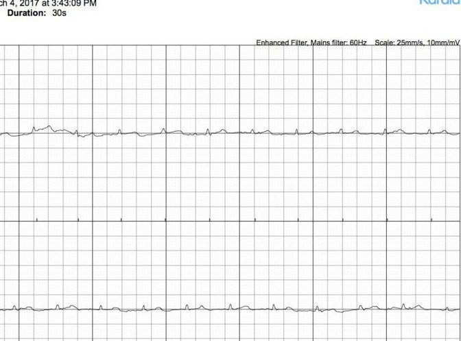 What Is The Cause of Low Voltage (Unreadable or Unclassified) AliveCor/Kardia Mobile ECG Recordings?
