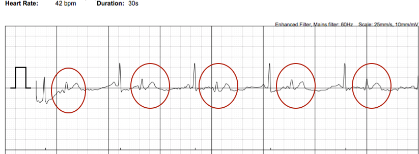 how to read a premature ventricular contraction