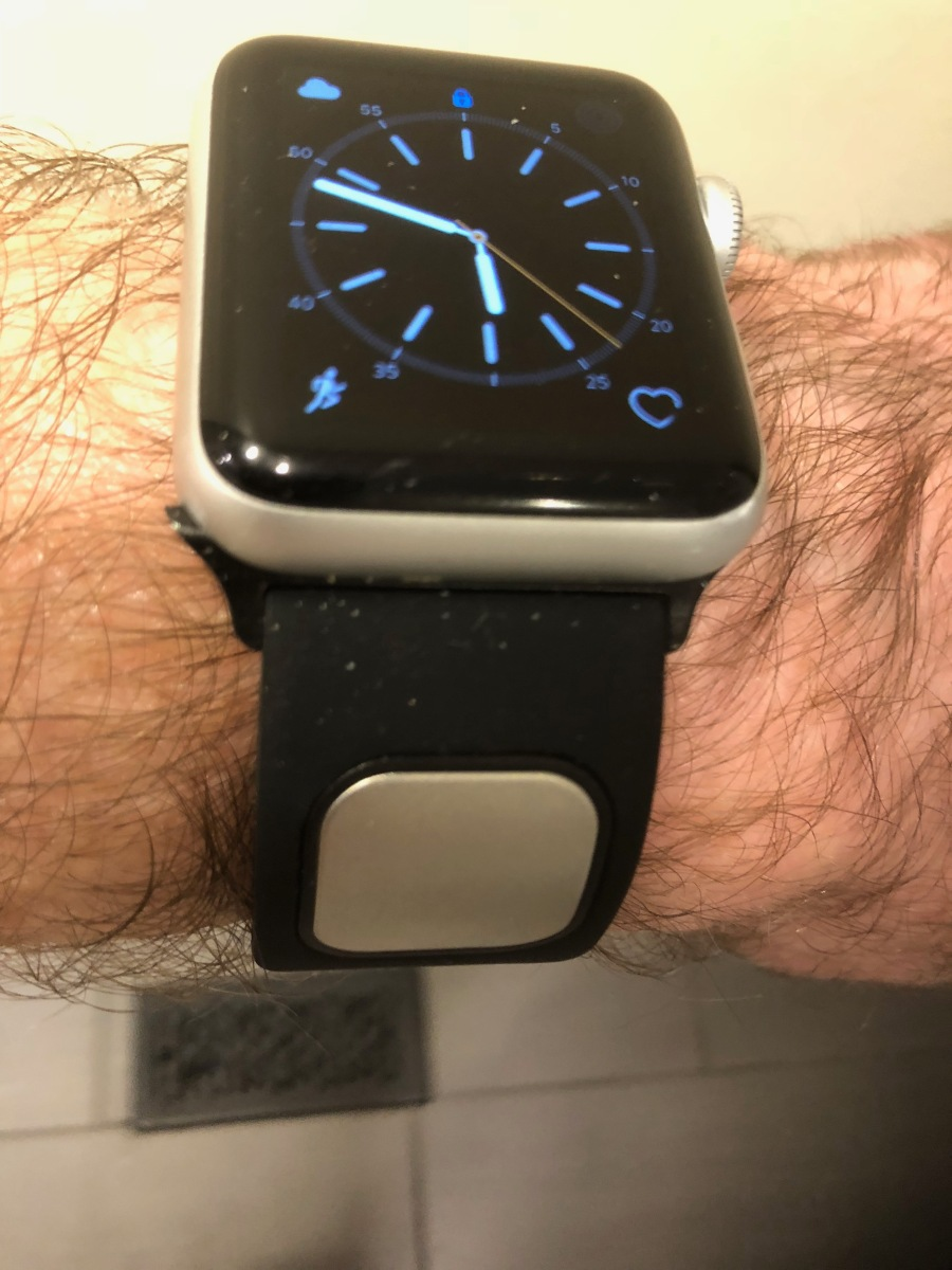 Review Of Kardia Band Mobile Ecg For Apple Watch The
