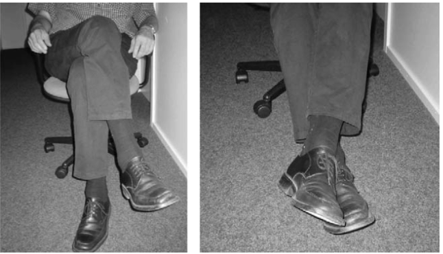 Optimal Home Blood Pressure Monitoring: Must The Legs Be Uncrossed and The Feet Flat?