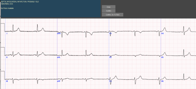 """""""Should You Get A Routine Annual Electrocardiogram?"""", Revisited"""