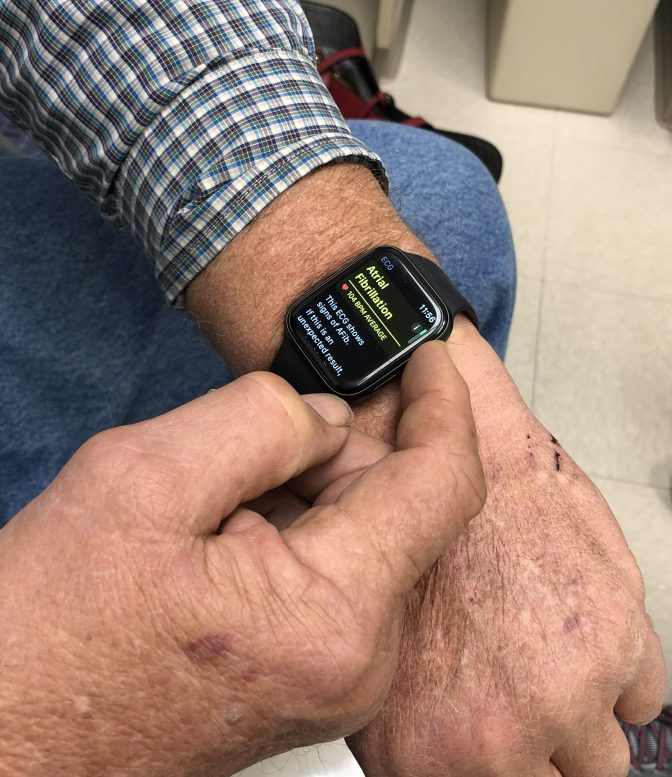 Putting The Apple Watch 4 ECG To The Test In Atrial Fibrillation: An Informal Comparison To Kardia